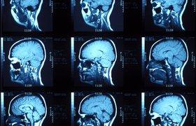 Ученые тестируют новый способ вывода пациентов из комы