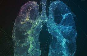 Kaggle раздаст разработчикам $1 млн за «умный» алгоритм для выявления рака легких