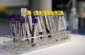 Theranos отозвала все результаты по своему методу анализа крови за 2 года