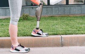 Бионические протезы: кто создаёт киборгов в России?