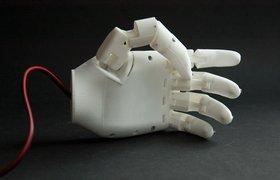 Протез, распечатанный на 3D-принтере, получил лицензию