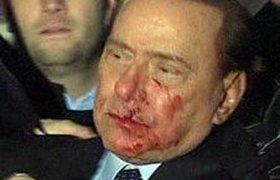 Психопат сломал Сильвио Берлускони нос и зубы