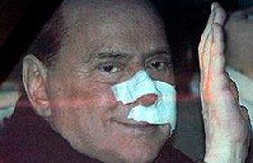 Берлускони мог подстроить нападение на самого себя