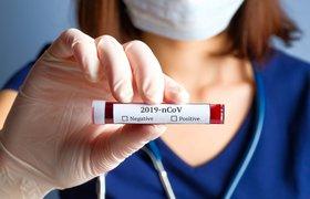 Москвичей начнут массово тестировать на коронавирус