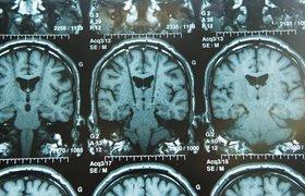 Мозговой имплант оказался эффективен в борьбе с депрессией
