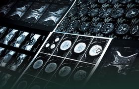 Ученые изобрели новый способ медицинского «таргетинга»