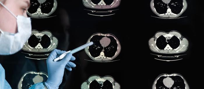 компьютерная томография, снимок легких, коронавирус